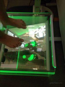 Сканирование стопы - выявление плоскостопия у детей